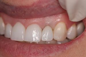 after dental crown